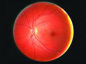 UAB Undergrad Awarded Grant to Study Drug's Effect on Retinal Disease